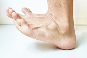 Heel and Toe Dips to Improve Lower Leg Circulation